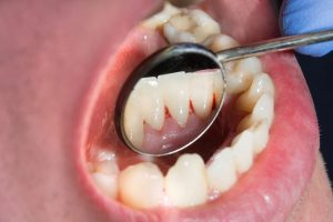 More than 50% of adults in Ireland delayed dental check-ups over the last 12 months